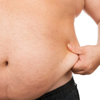 cancer outcomes adversely affected by obesity and diabetes