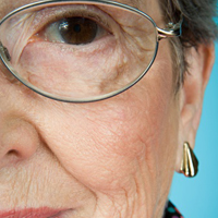 color vision abnormalities become common in over 40 percent of older adults