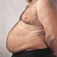 obesity reduces your life expectancy by 14 years on average