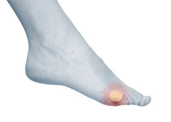 diabetic blisters foot with bandaid and infection